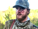 Florida Turkey Hunter Mauled by Panther